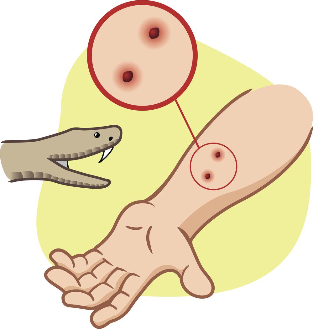 Snake bite graphic, iStock